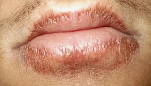 Chapped_lips